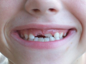 gap tooth